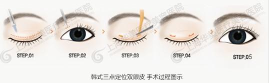 韩式三点定位双眼皮手术采用韩式微创整形