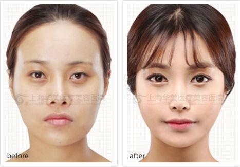 韩式切开法双眼皮成功案例