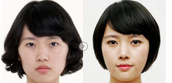韩式双眼皮前后对比图图片