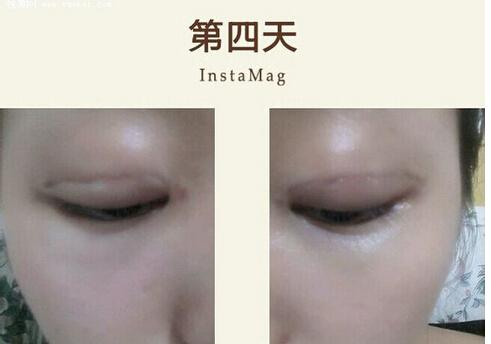 埋线双眼皮恢复过程